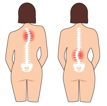 脊柱側湾症